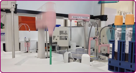 automated and manual tests in the clinical lab